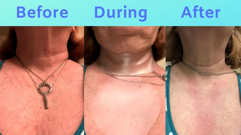 SiO results on Sue's chest