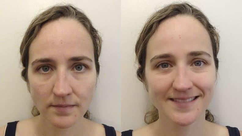 After Neutrogena Rapid Wrinkle Repair