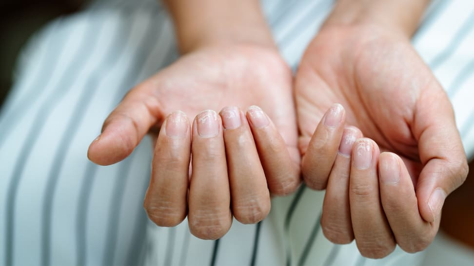 A person holding out their hands palm side up with their fingertips curled upward. The fingernails look dry.