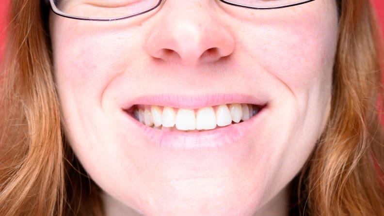 Baking_soda_teeth_before