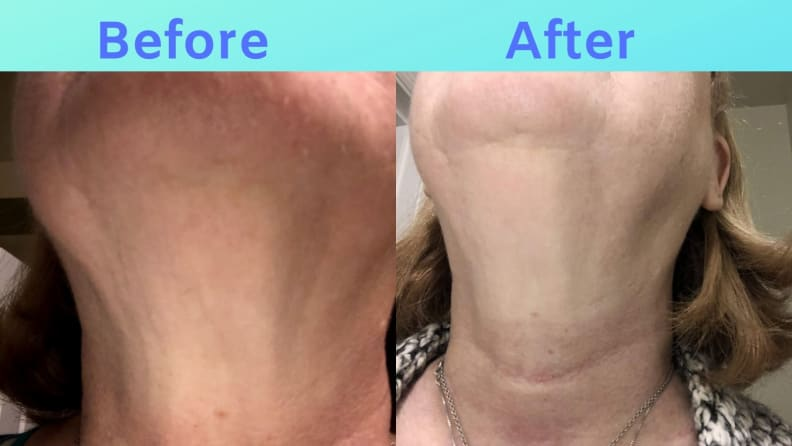 Sue SiO results on her neck