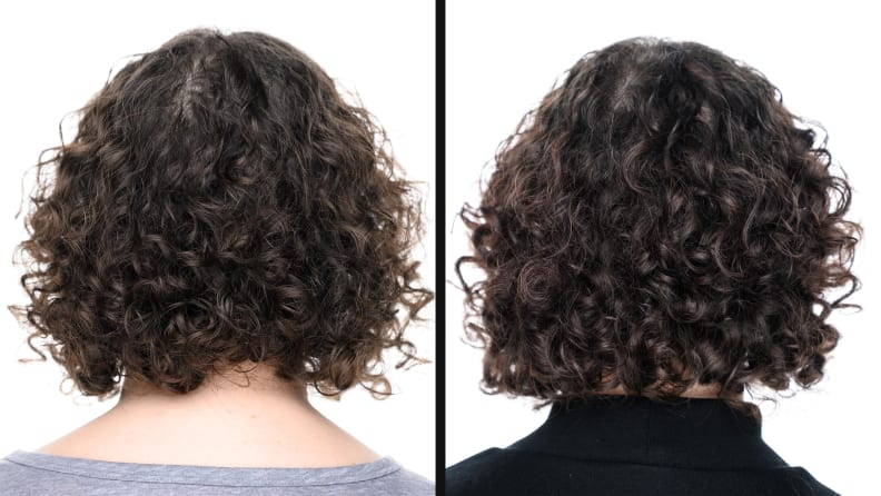 Overtone Before After