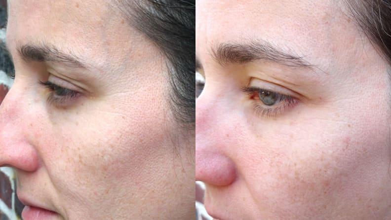 Before-After Neutrogena Rapid Wrinkle Repair