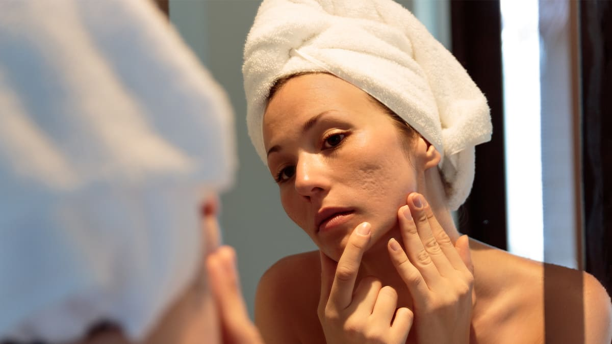 Acne scars can affect anyone—here's what you should know